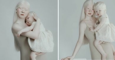 Two Remarkably Beautiful Albino Sisters From The Same Family Become Modeling Sensations